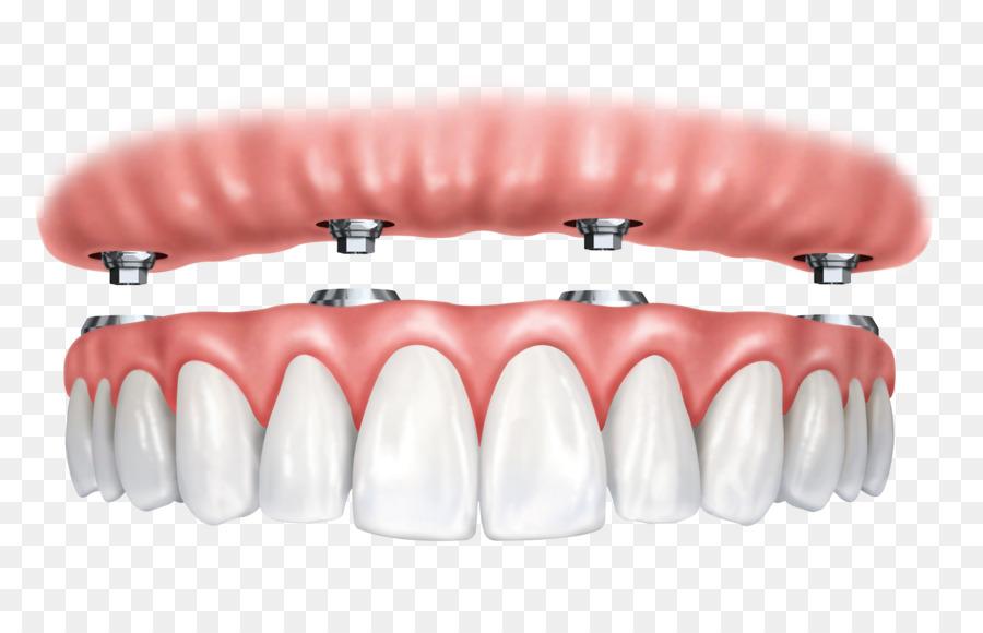 Descarga gratuita de Implante Dental, Allon4, Dentista imágenes PNG
